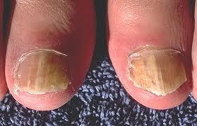 Penyakit Jamur Kuku